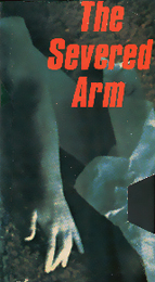Coverscan of The Severed Arm